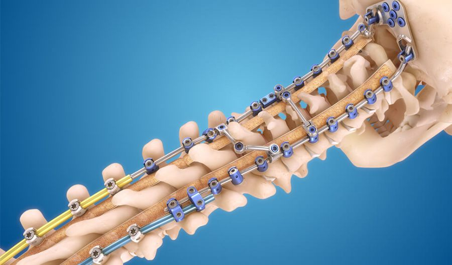 Spinal_Implants